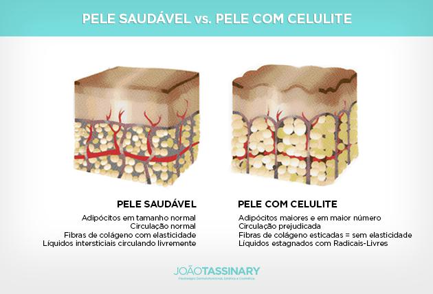Pele Saudavel vs. Pele com Celulite