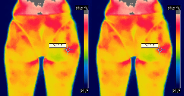 Termografia para diagnóstico de Celulite